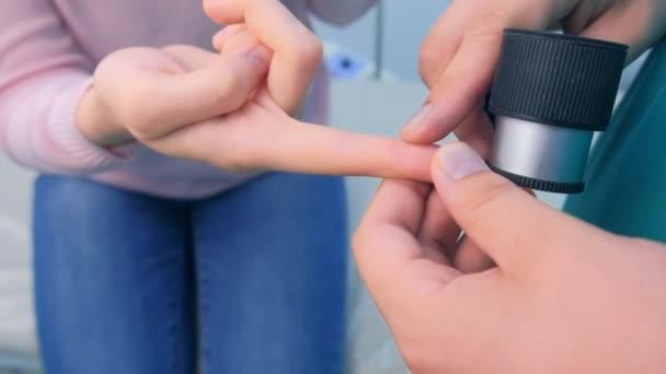 Chirurg untersucht Warze am Finger mit Dermatoskop-Lupe vor Entfernung.