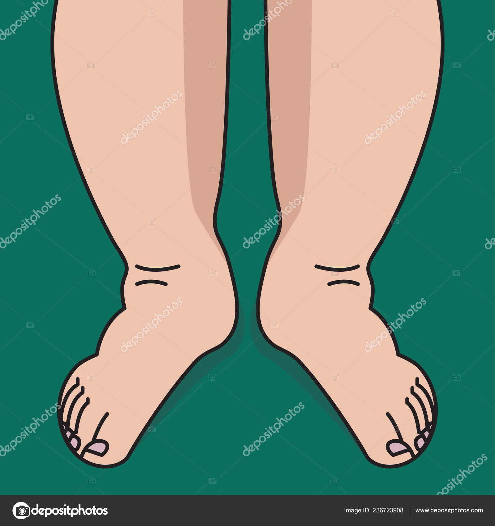 Ayudan ¿Las piernas hinchazón? la elevadas a