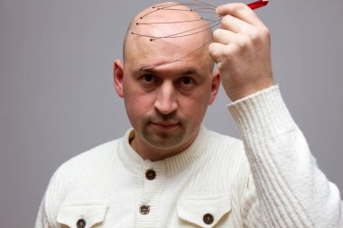 Man relaxes with the Genie head massager. Alternative Therapy. Indian head massage tool, self head massager.
