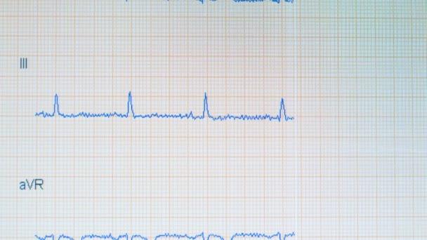 EKG képet. EKG figyelő egészséges szívverés