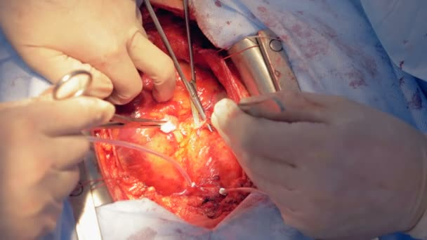 Surgeons suturing patients heart, close up.