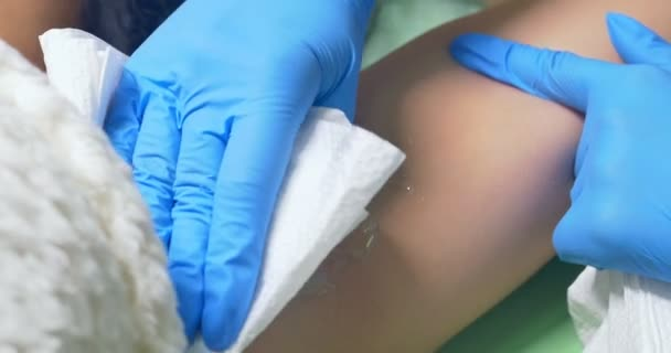 The doctor wipes out the gel from the skin. Laser epilation and cosmetology. Cosmetic spa clinic