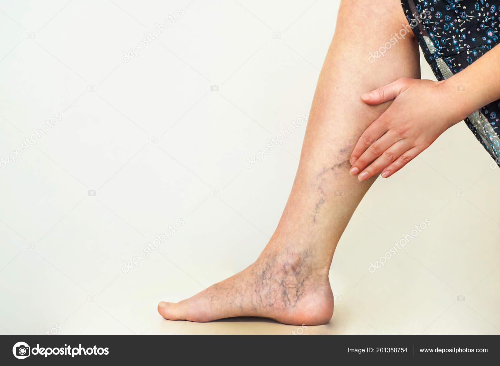 ciorapi din varicose vene photo
