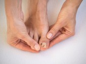 Contusione sul dito del piede. Problemi del piede