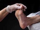 Nahaufnahme von Schwielen. schmerzhaftes Getreide zu Fuß. Behandlung von Hühneraugen an den Füßen