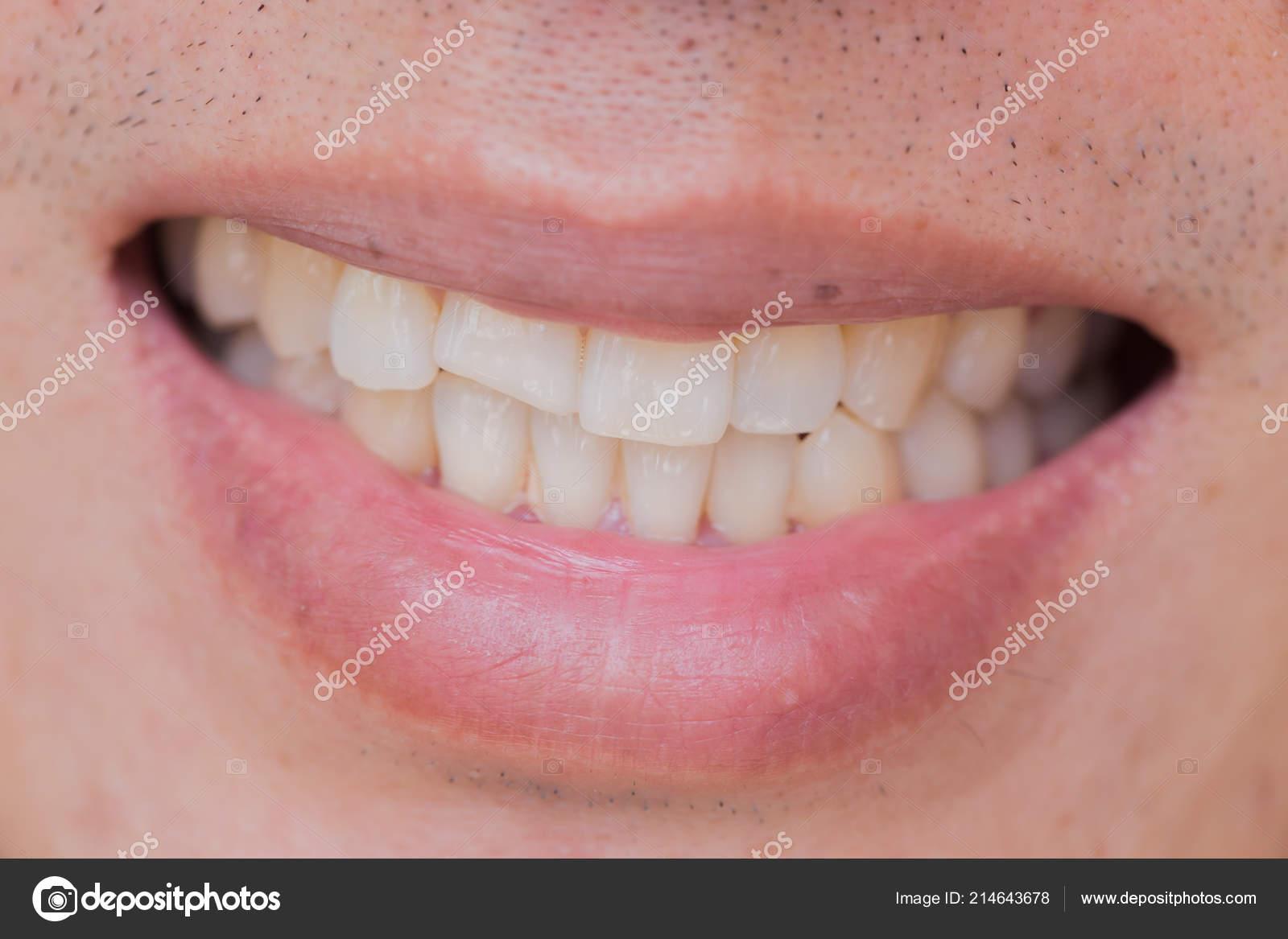 4aed5eeac Problema Dental Sorriso Feio Lesões Dentes Dentes Quebrando Masculino  Trauma — Fotografia de Stock