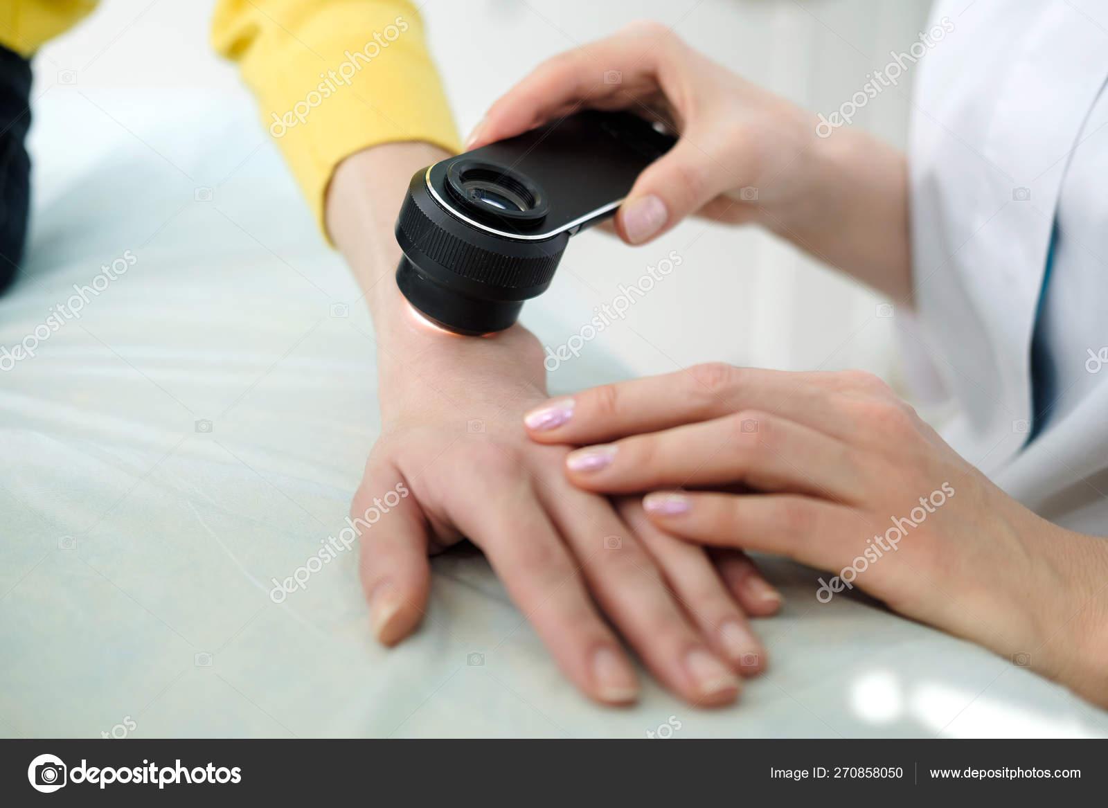 Female Dermatologist Using Professional Dermatoscope While Doing