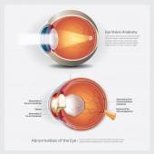 Anatomie oka s oční abnormality vektorové ilustrace