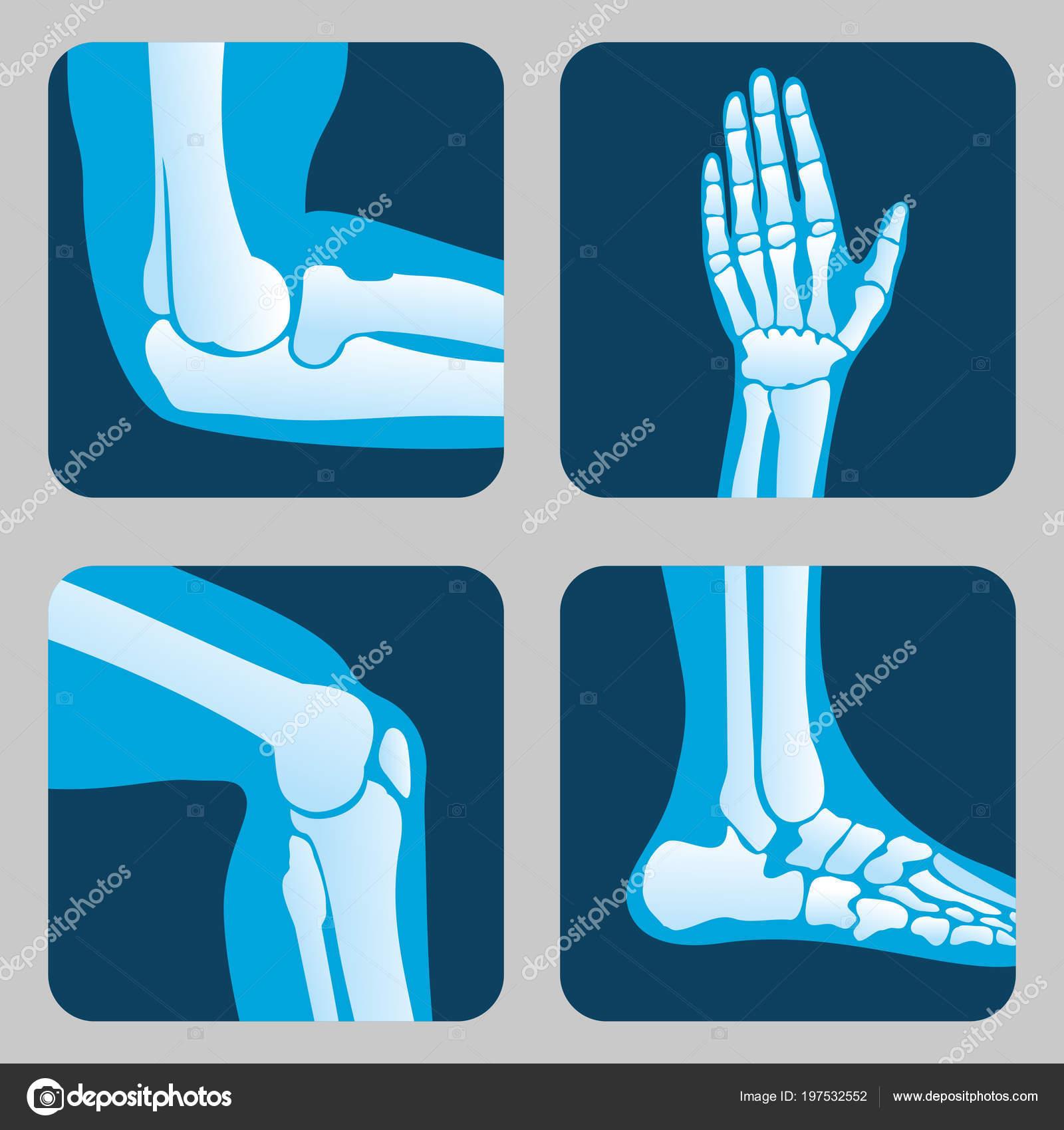 Menschliche Gelenke, Knie und Ellenbogen, Sprunggelenk Handgelenk ...