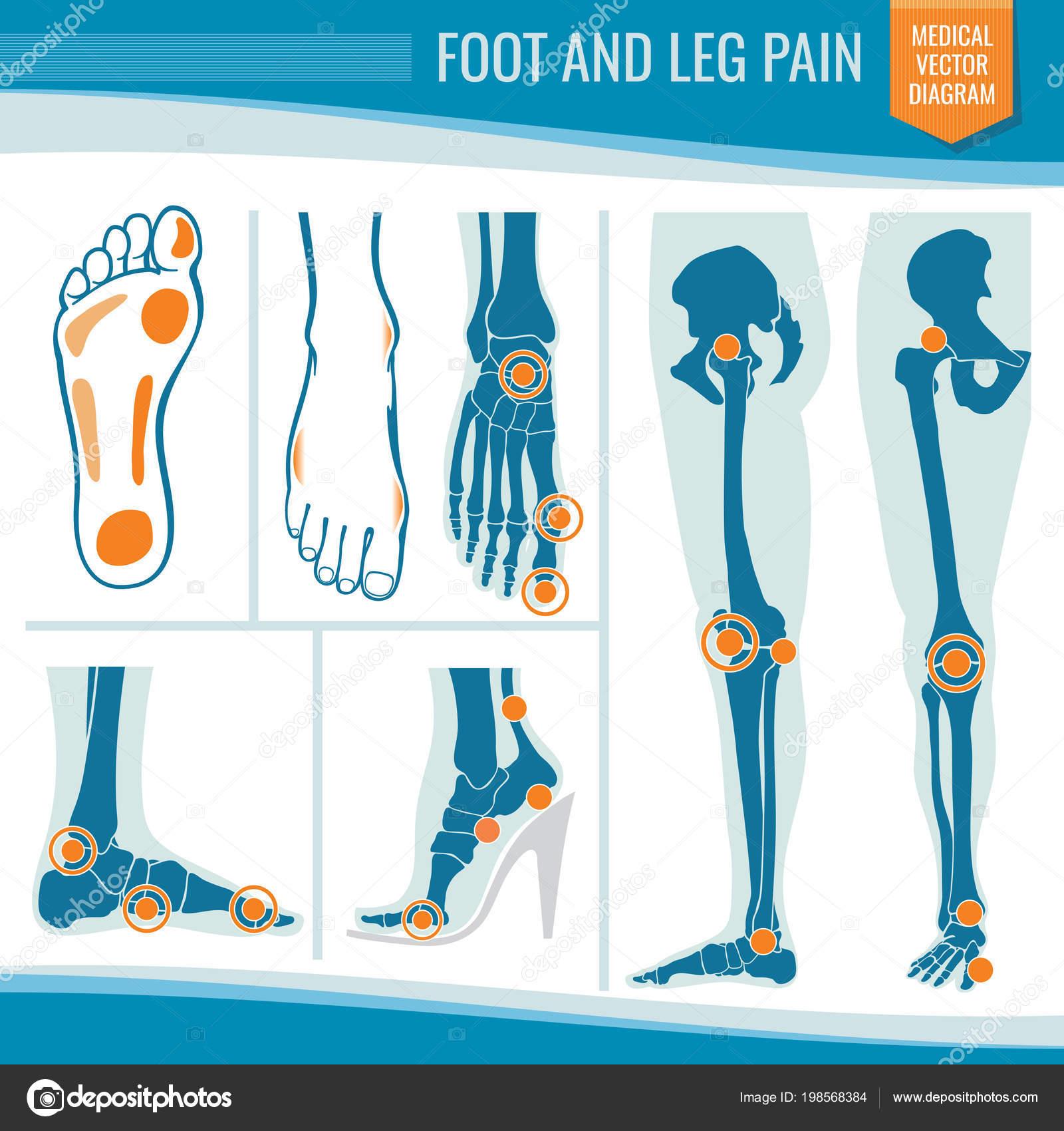 Dolor de pies y piernas. Diagrama del vector médico ortopédico ...