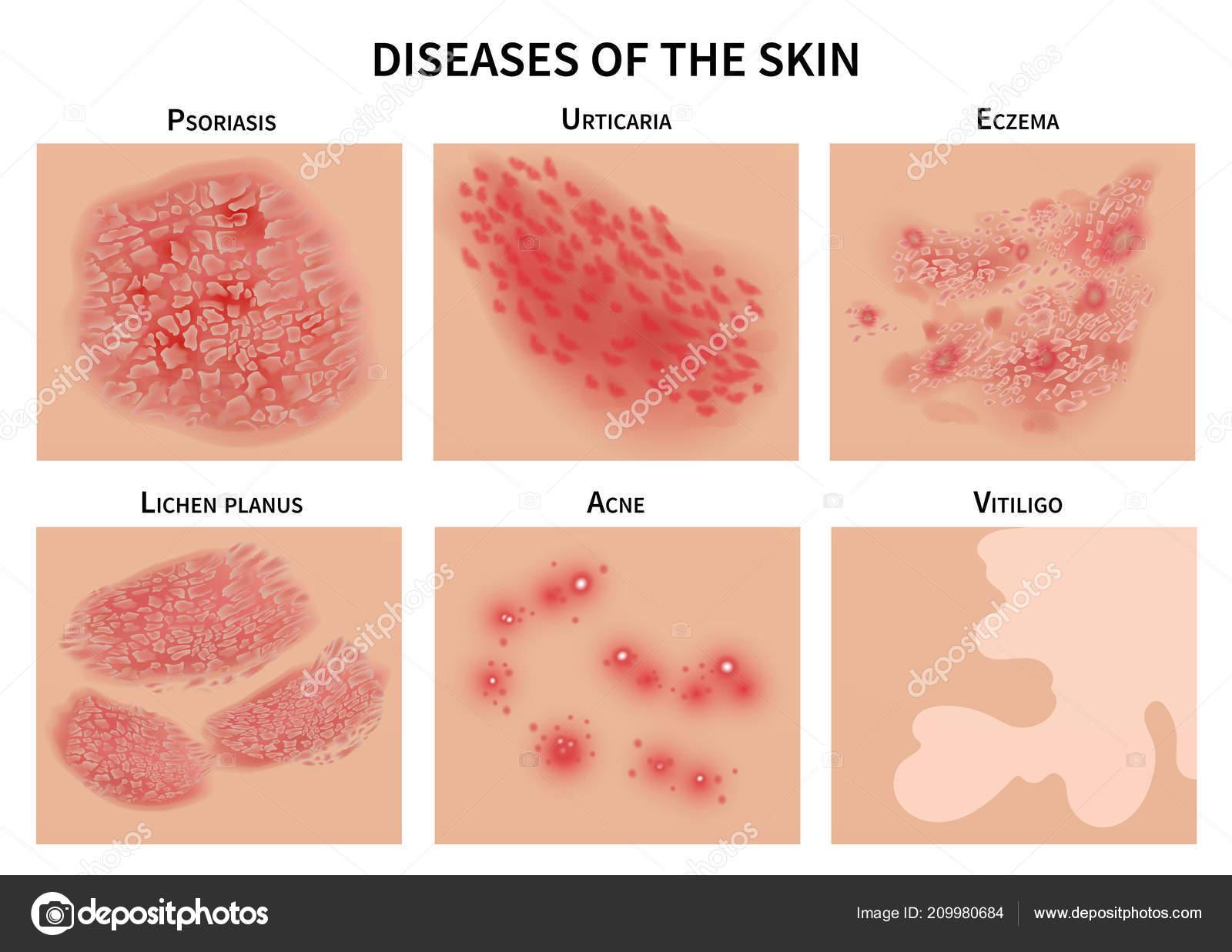 Какие бывают кожные болезни у человека
