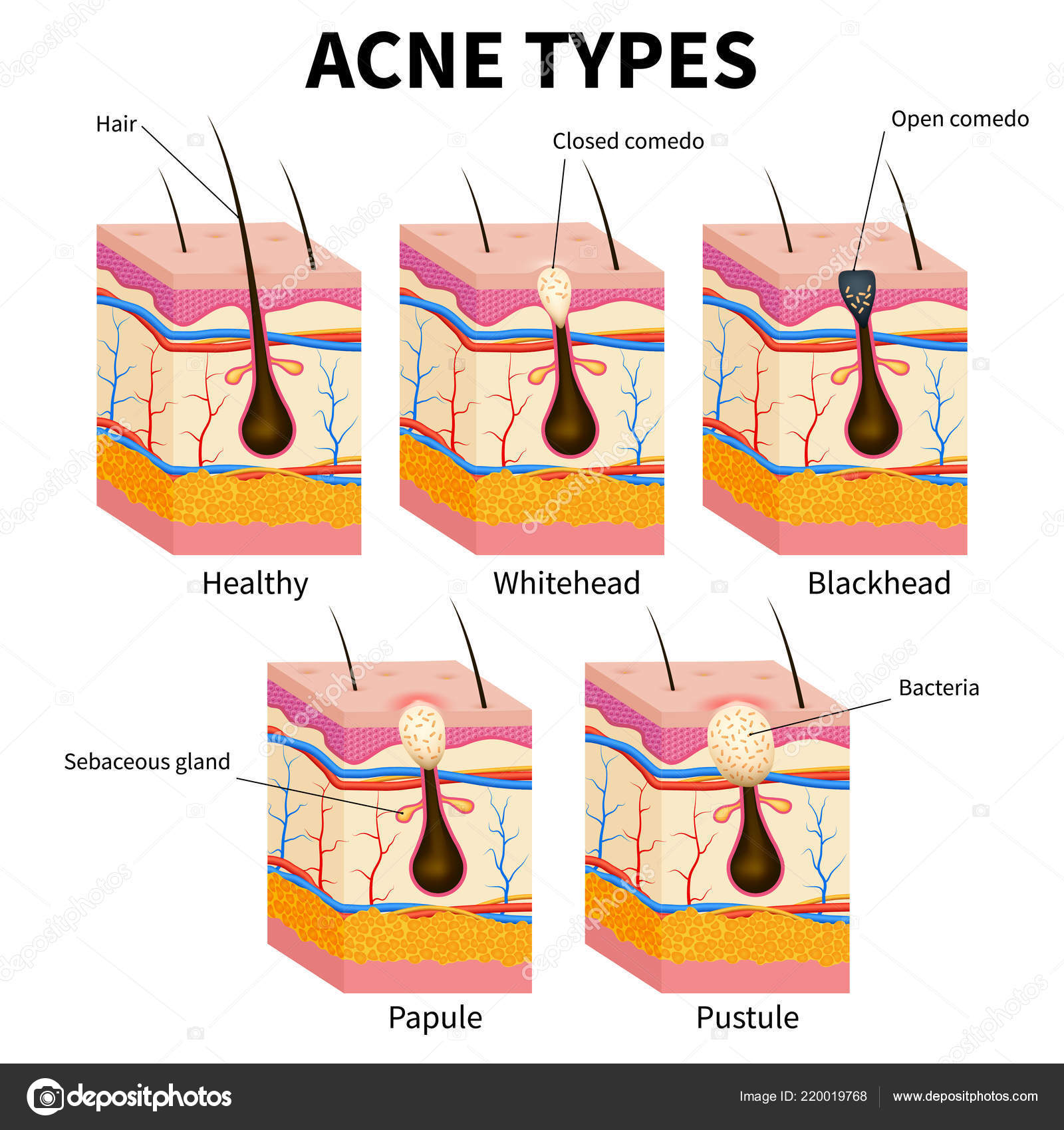 pimple diagram area wiring diagram on the net papule pimple deep pimple diagram get wiring diagram