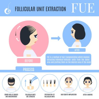 Follicular unit extraction female hair loss treatment infographics. Stages of FUE restoration surgery. Alopecia medical design template for transplantation clinics. Vector illustration. Cartoon style