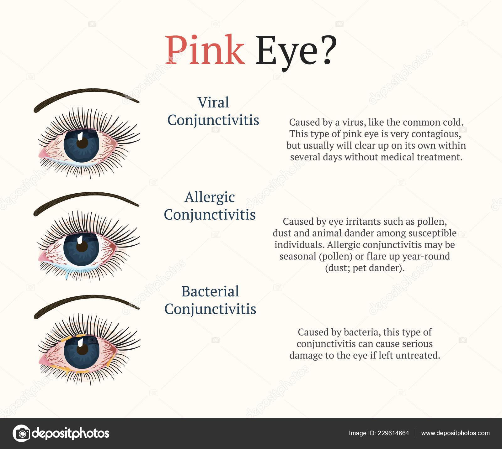 c88c3fed40 Ασθένεια των ματιών. Εικονογράφηση υγείας οφθαλμολογία ...