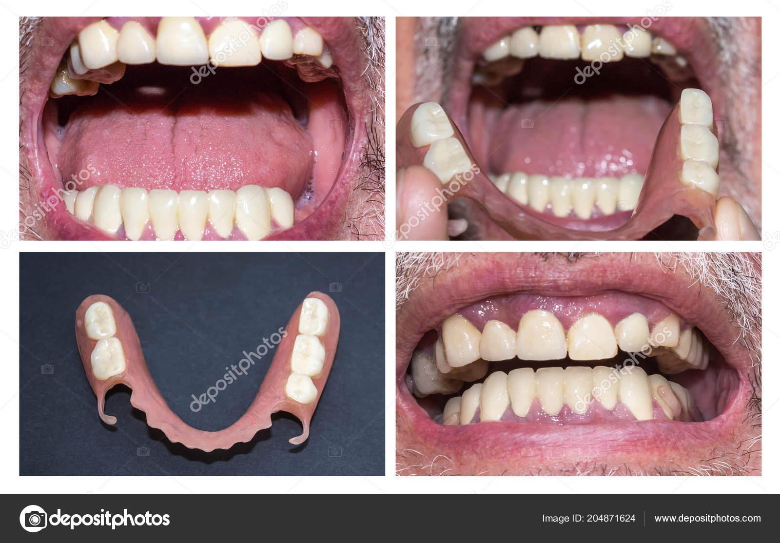 3916aa5f5d49 Reabilitação dentária com prótese superior e inferior, antes e após o  tratamento — Fotografia de
