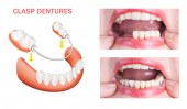 Dental rehabilitation with upper and lower prosthesis, before and after treatment