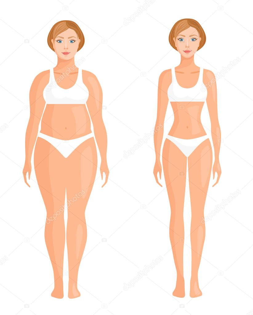 Thick And Thin Girl Female Figure Before And After Weight Loss Or Plastic Surgery Vector Illustration In Cartoon Style Banner On The Topic Of Weight Loss Diet And Healthy Lifestyle Premium