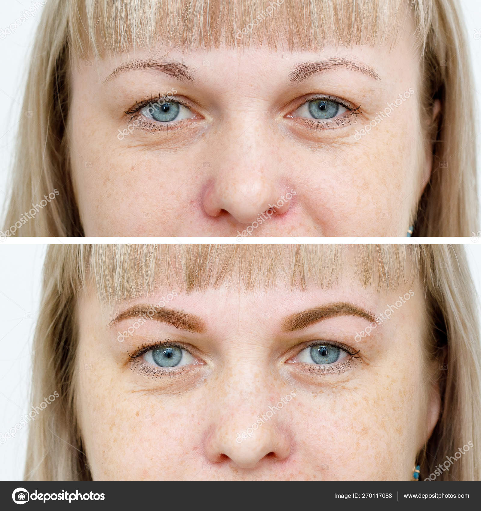depositphotos_270117088-stock-photo-photo-comparison-before-and-after.jpg