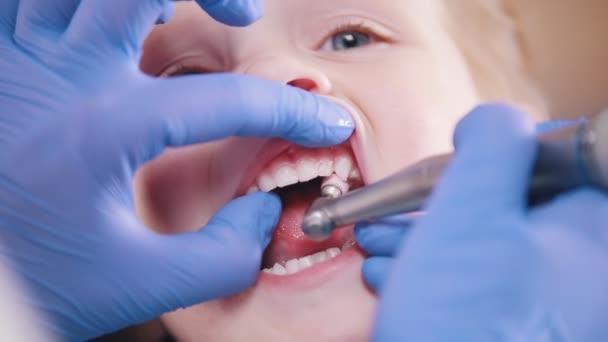 Dentistry. Female dentist polishing teeth of little baby. Close up
