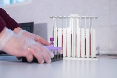 Medical clinic. Nurse put a stand with test tubes near the pipettes filled up with blood