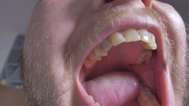 Offener Mund mit schlechten Zähnen, schiefe Zähne