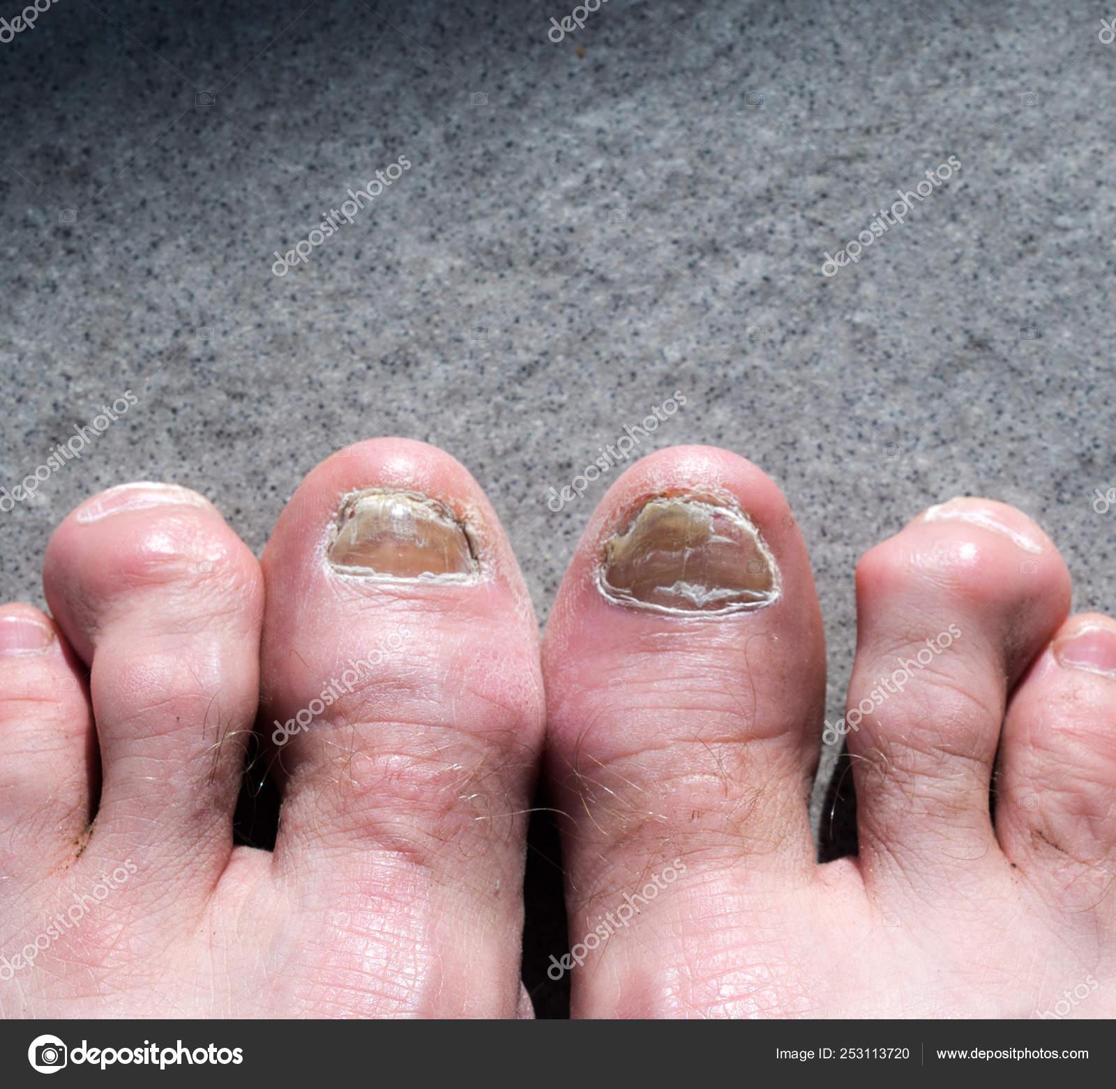 on sale 531ef 5fea5 Piedi brutti maschi e dita colpite di tep unghie fungo e ...