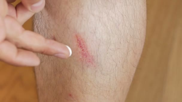 Close-up of a mans leg with an abrasion. A man smears a wound with cream.