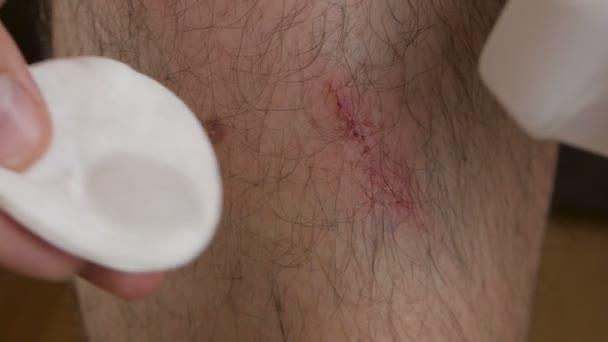 Close-up mans noha s oděru. Muž léčí rány s chlorhexidin tekutiny z láhve.