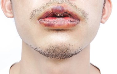 Closeup lips man upper and lower with reduction surgery, beauty concept