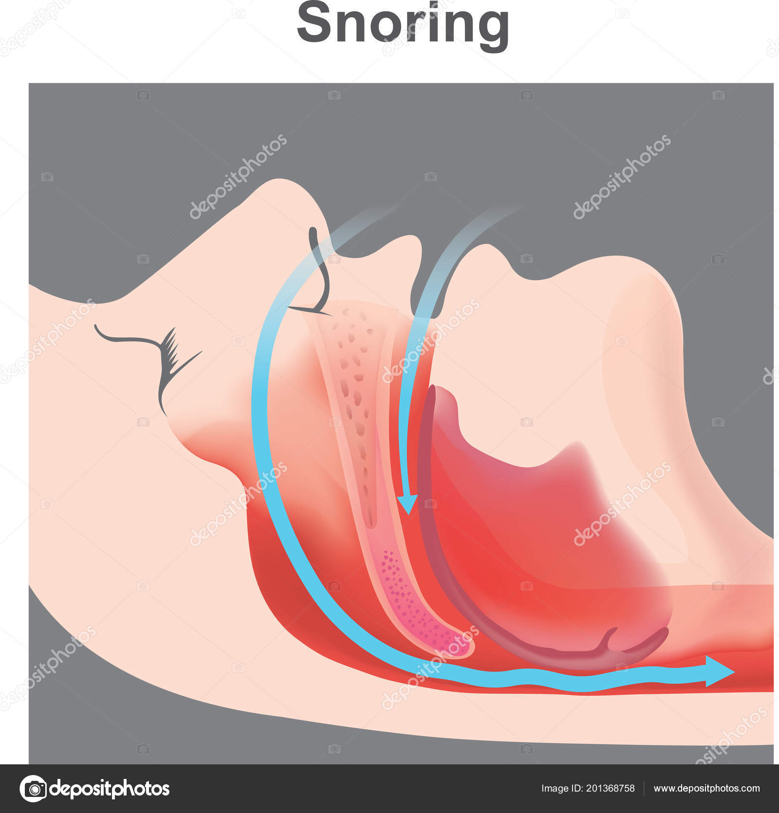 Snoring Vibration Respiratory Structures Resulting Sound Due ...