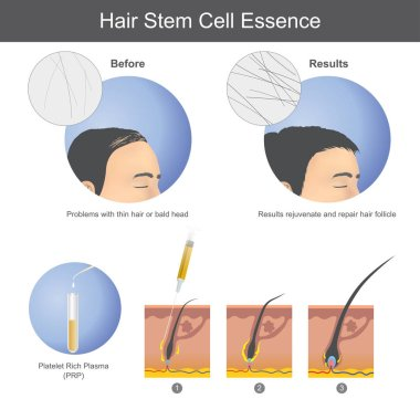 Stimulating hair growth using platelet rich plasma (PRP) to inject onto the scalp until it penetrates to the hair root. Infographic health care.