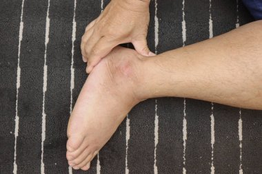 Treating injuries to the feet and leg with the push of a finger
