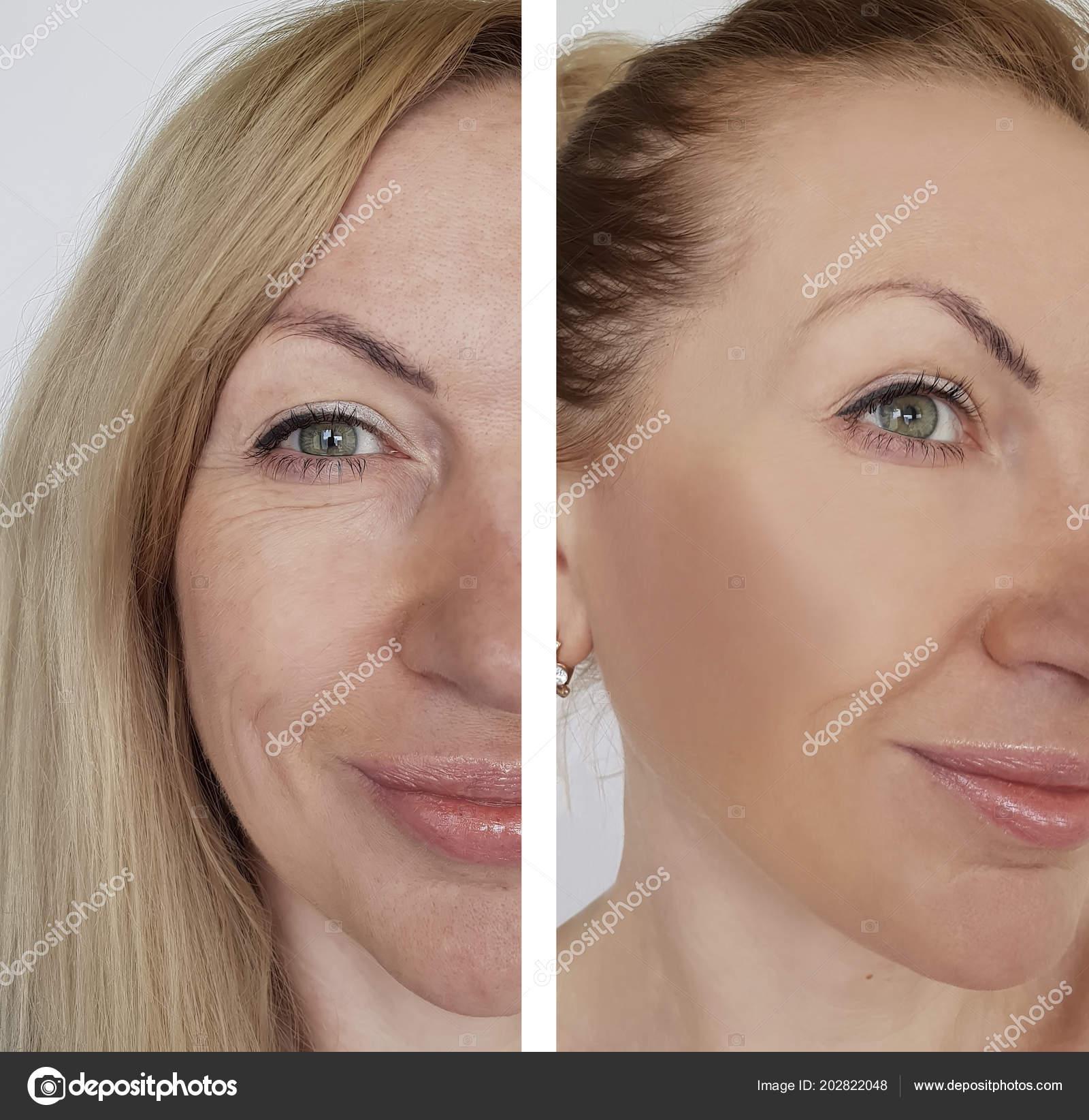 8bcdd79fea98 Falten Gesicht Frau Vor Und Nach Kosmetischen Eingriffen — Stockfoto ...