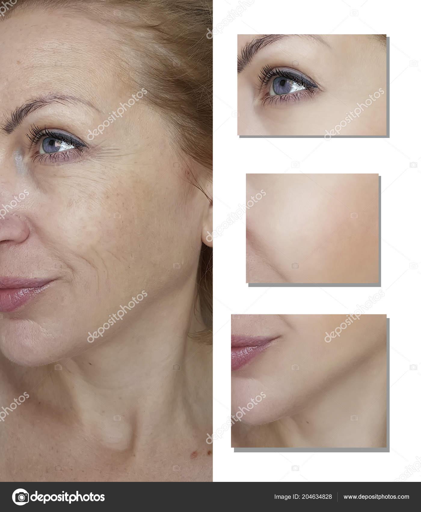 b6ecebc85f17 Falten Gesicht Frau Vor Und Nach Verfahren — Stockfoto © TanyaLovus ...