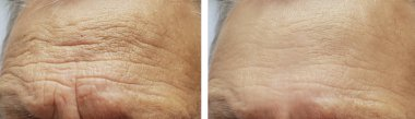 face elderly man forehead wrinkles face before and after procedures