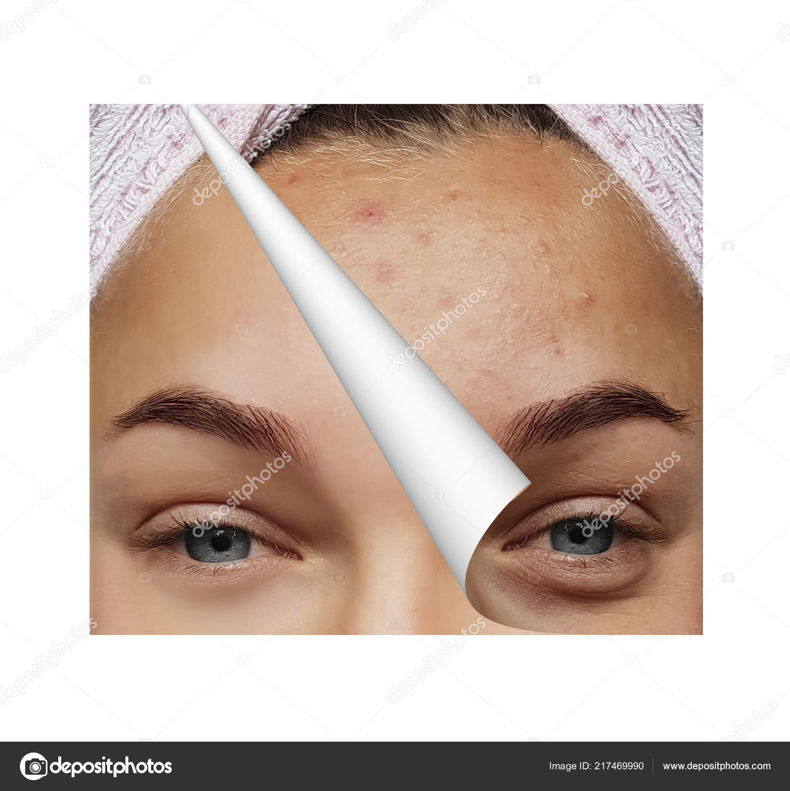 Girl Pimples Bags Eyes Procedures Collage — Stock Photo