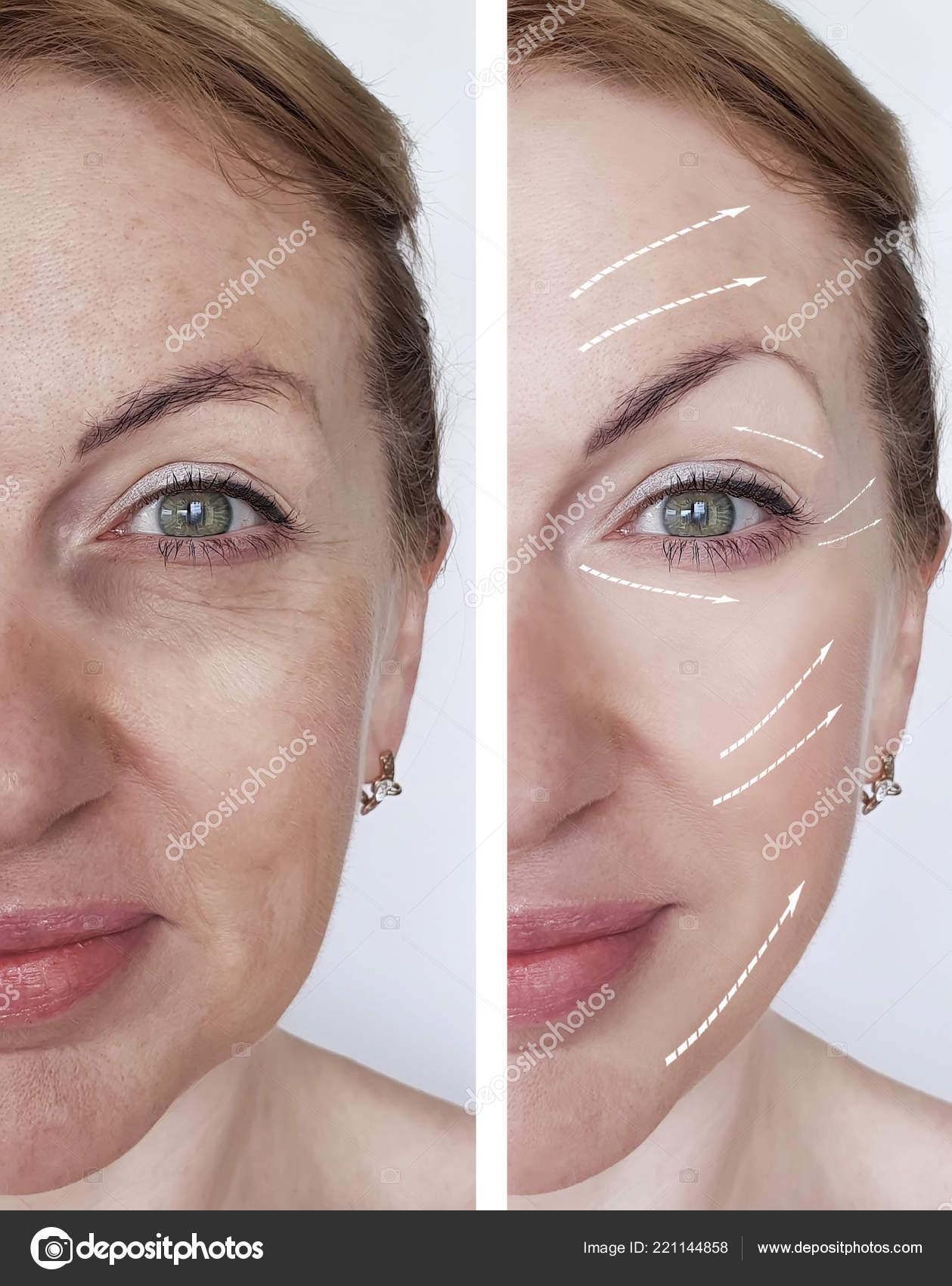 09e0e51a3874 Frau Falten Gesicht Vor Und Nach Verfahren — Stockfoto © TanyaLovus ...