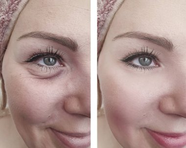 woman wrinkles before and after correction procedures
