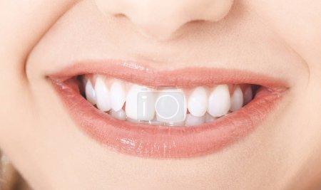 Photo pour Vue proche du beau sourire avec des dents propres blanches. Concept dentaire. - image libre de droit