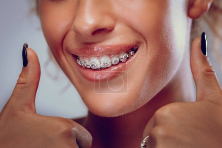 Close view of smiling woman with braces on teeth