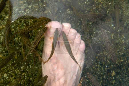 Fish spa - man's feet getting pecked by a shoal of trout