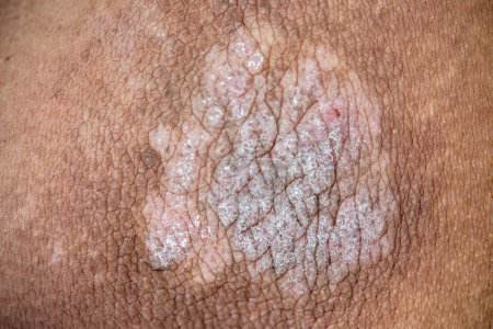 Photo for Psoriasis on man skin, close up. - Royalty Free Image