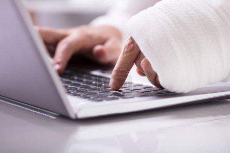 Foto de Primer plano de un hombre con vendaje envuelto en su mano con portátil en el lugar de trabajo - Imagen libre de derechos