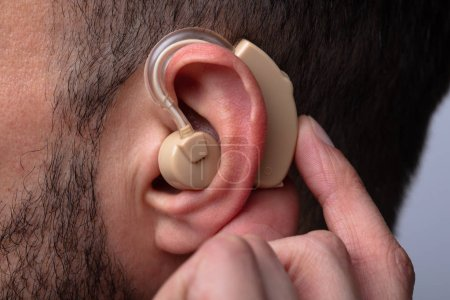 Close-up Of A Man's Hand Inserting Hearing Aid In His Ear