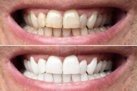 Close-up Of A Smiling Man Teeth Before And After Whitening