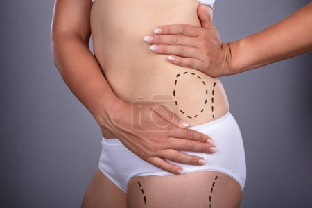Close-up Of Woman's Waist With Correction Lines For Surgery