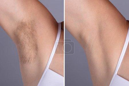 Photo pour Avant et après le Concept d'épilation aisselles de femme sur fond gris - image libre de droit