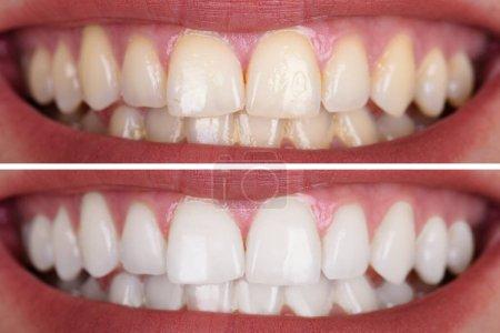 Photo pour Gros plan de dents d'une femme souriante avant et après blanchiment - image libre de droit