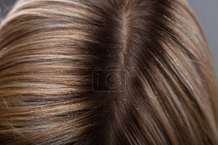 Close-up Of A Dandruff In Woman's Blonde Hair