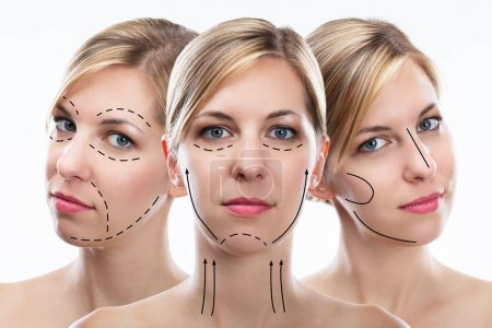 Multiple Exposure Of Pretty Young Woman's Face With Correction Lines